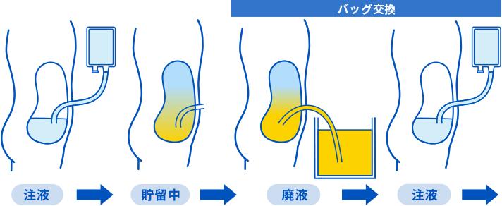 腹膜透析 CAPD | 社会医療法人愛仁会 【井上病院】